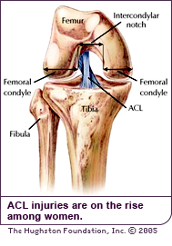 ACL injuries are on the rise among women.